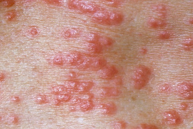 1800ss princ rm photo of scabies skin infection